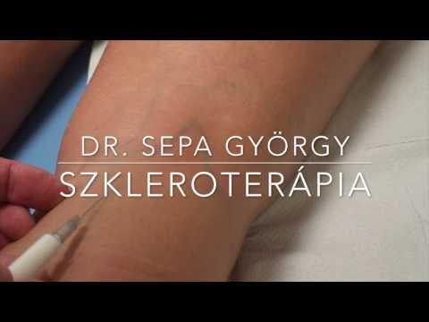 hogyan lehet enyhíteni a láb fáradtságát visszerekkel női ortopéd térdmagasság visszeres