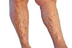 visszér a lábakon alternatív módszerekkel