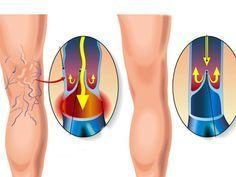 hogyan lehet eltávolítani a visszerek a lábakon kenőcs