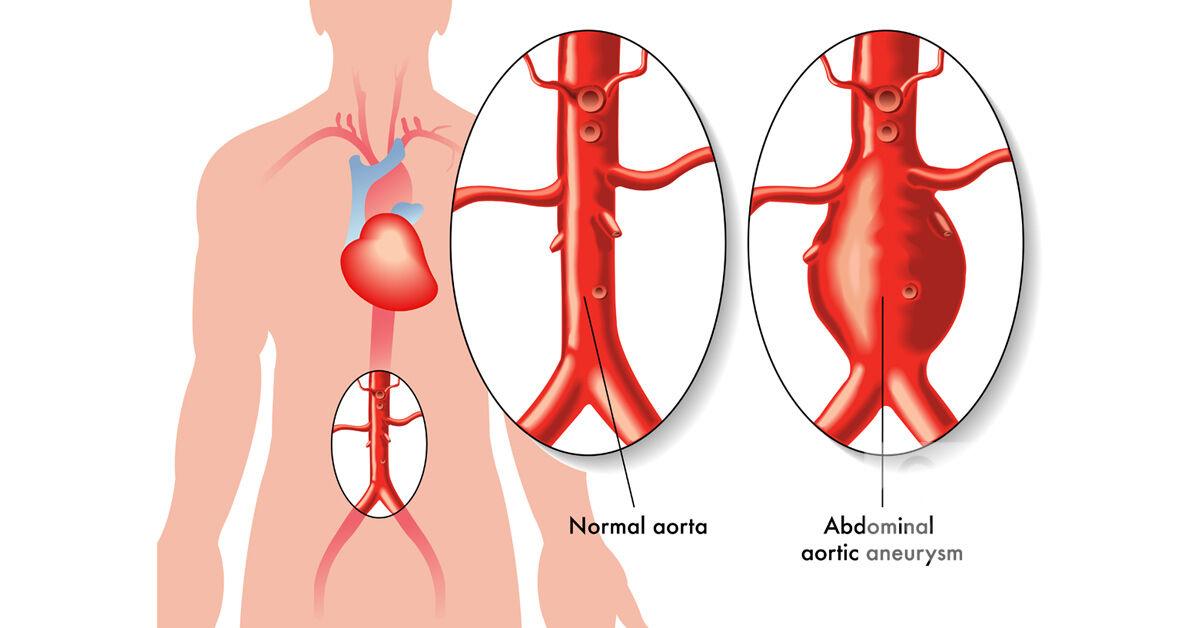 Ér (anatómia) – Wikipédia