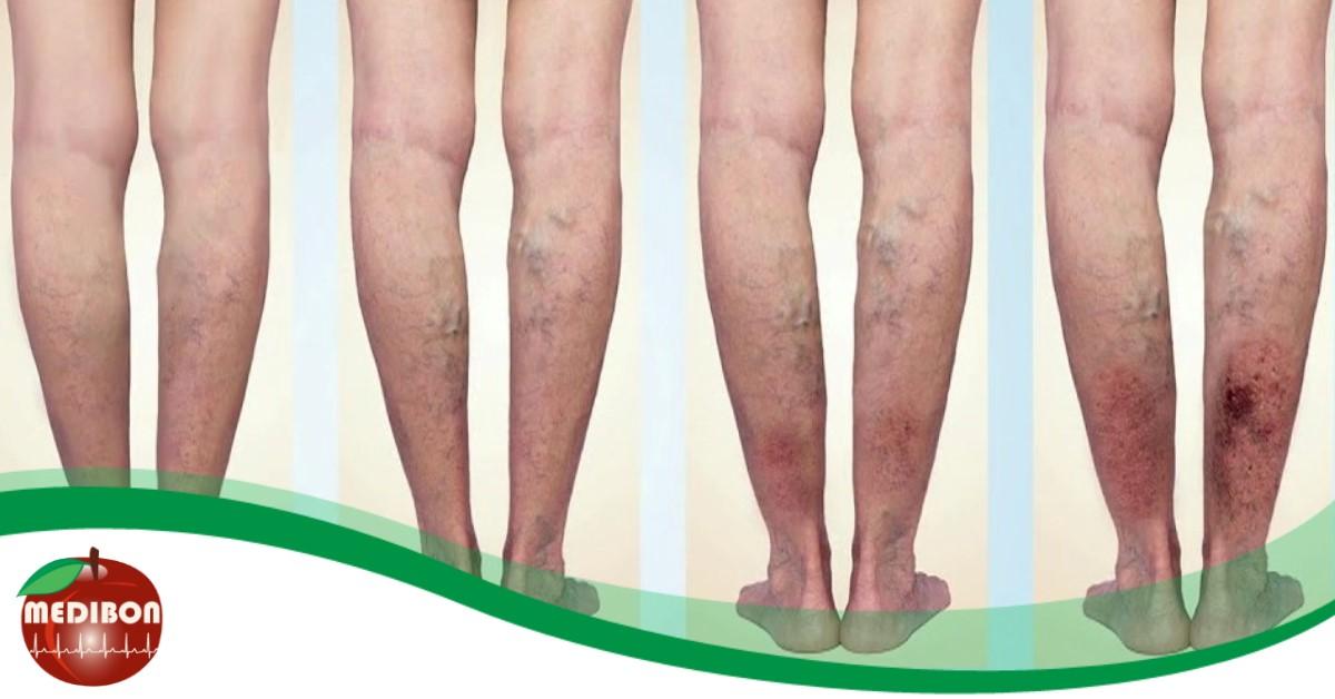 hogyan működtetik az alsó végtagok varikózisát visszérrel a lábak nagyon fájnak