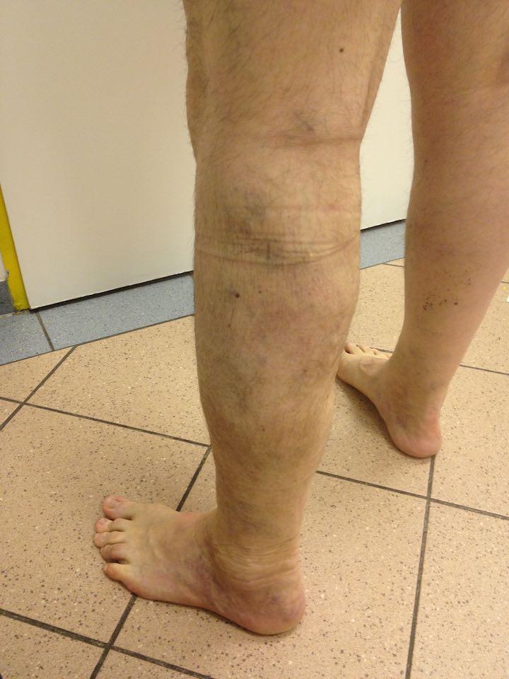 visszér műtét műtét előtt és után
