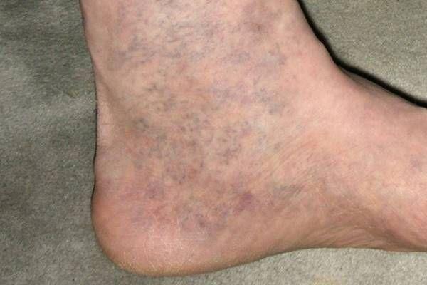 megbeszélés visszér a lábak varikózisának kezelése lézerrel