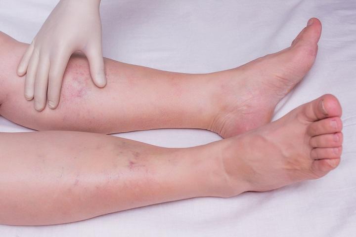 visszérgörcsök a lábakban hogyan kell kezelni