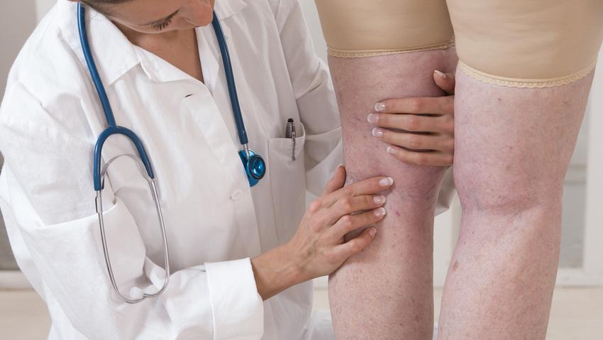 visszér kezelésére vagy műtétre
