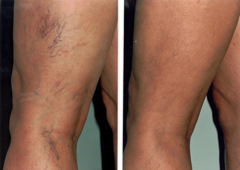 visszérműtét, amikor dolgozhat ha nem kezeli a varikózisokat a lábakon
