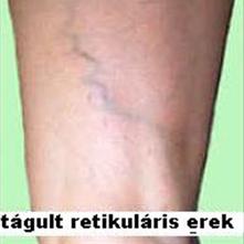telangiectasias és az alsó végtagok retikuláris varikózisai)